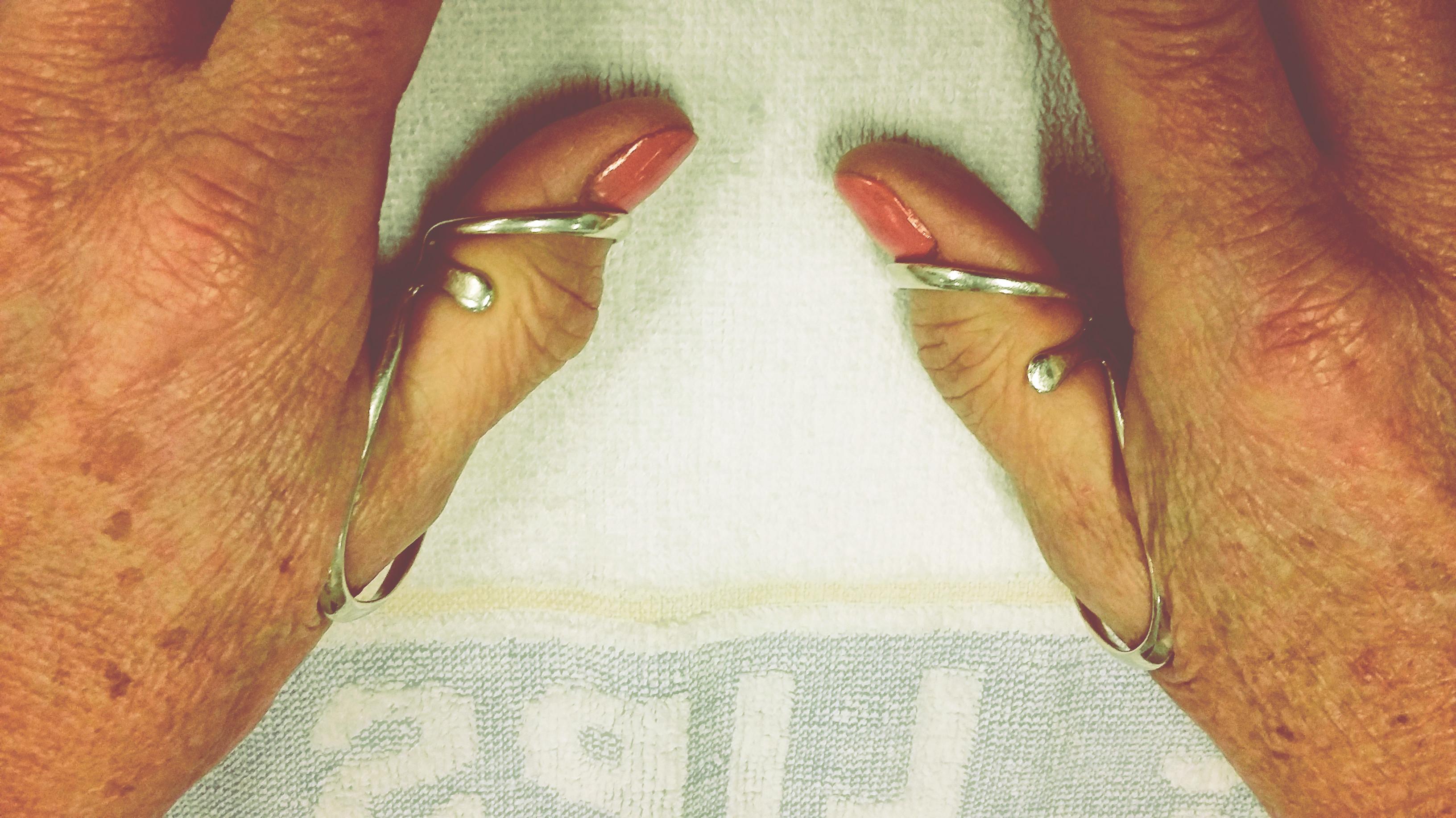 duimen-silversplints.jpg